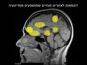 brain-mindful